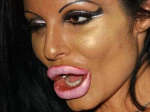 Botoxfails 05